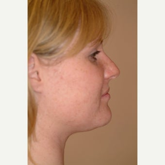 25-34 year old woman treated with Chin Liposuction