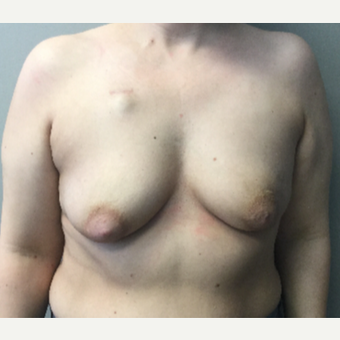 35 year old woman treated with Breast Reconstruction before 3401270