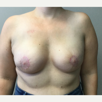 35 year old woman treated with Breast Reconstruction after 3401270