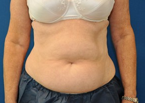 CoolSculpting after 1177656