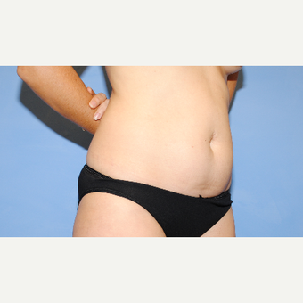 25-34 year old woman treated with Liposuction before 3763419