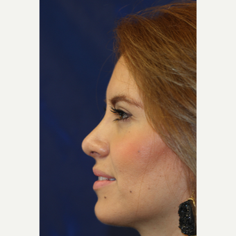 35-44 year old woman treated with Rhinoplasty after 3401749