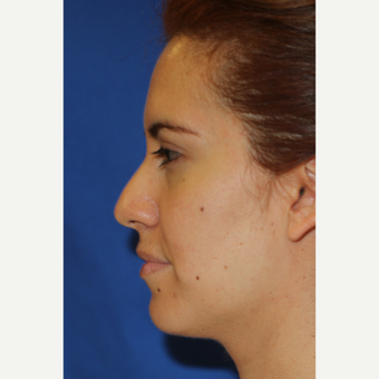 35-44 year old woman treated with Rhinoplasty before 3401749