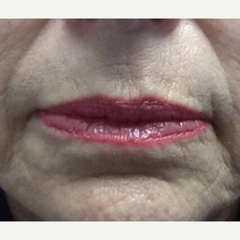 65-74 year old woman treated with Restylane Silk before 1831330