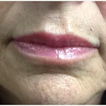 65-74 year old woman treated with Restylane Silk after 1831330