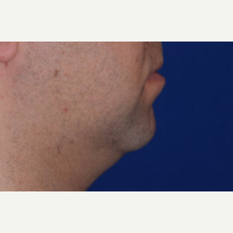 25-34 year old man treated with Chin Liposuction before 3638178
