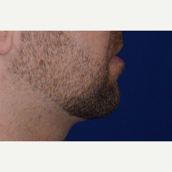25-34 year old man treated with Chin Liposuction after 3638178