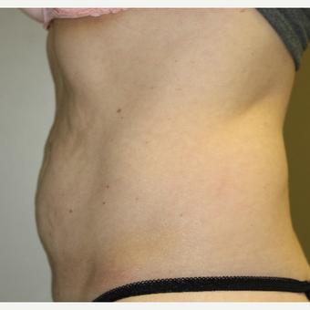 45-54 year old woman treated with SculpSure before 3014997