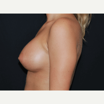 18-24 year old woman treated with Breast Implants after 3650754