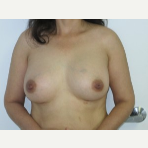 Breast Augmentation after 3054754