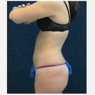 18-24 year old woman treated with CoolSculpting after 3181794