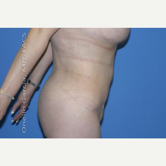 "45-54 year old woman treated with Body Lift-Circumferential ""Belt"" lipectomy + Vaser Liposuction after 3041532"