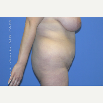 "45-54 year old woman treated with Body Lift-Circumferential ""Belt"" lipectomy + Vaser Liposuction before 3041532"