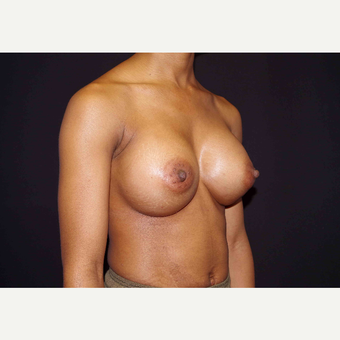 25-34 year old woman treated with Breast Implants after 3439906