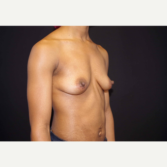 25-34 year old woman treated with Breast Implants before 3439906