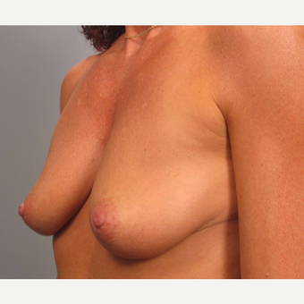 45-54 year old woman treated with Breast Augmentation before 3493254