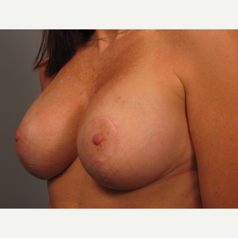 45-54 year old woman treated with Breast Augmentation after 3493254