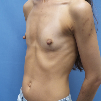 35-44 year old woman treated with Breast Augmentation before 3005006