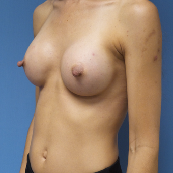 35-44 year old woman treated with Breast Augmentation after 3005006
