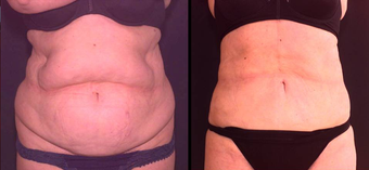Liposculpture before 657922