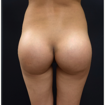 25-34 year old woman treated with Butt Augmentation Using 548cc Silicone Implants after 3033209