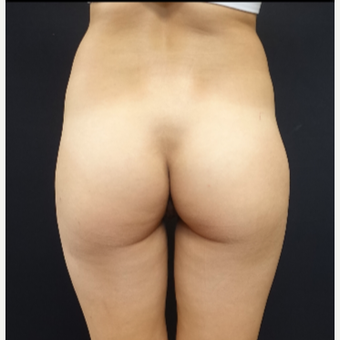25-34 year old woman treated with Butt Augmentation Using 548cc Silicone Implants before 3033209