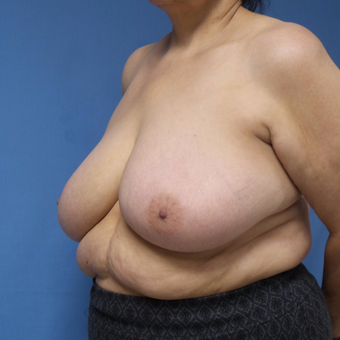 65-74 year old woman treated with Breast Reduction before 3087399
