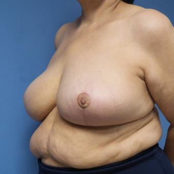 65-74 year old woman treated with Breast Reduction after 3087399