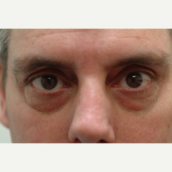 44 year old man treated with lower Eyelid Surgery before 2498691
