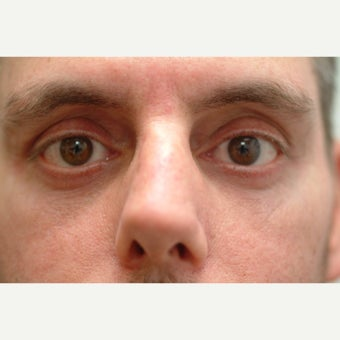 44 year old man treated with lower Eyelid Surgery after 2498691