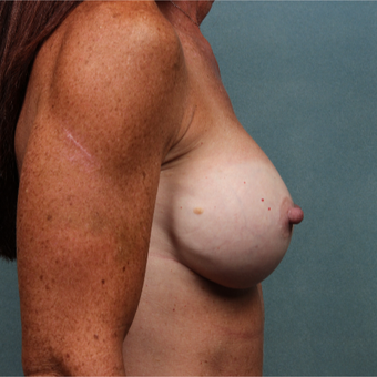 45-54 year old woman treated with Breast Augmentation after 3265158