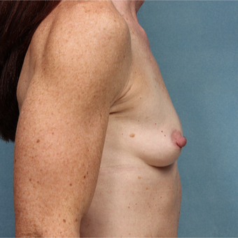 45-54 year old woman treated with Breast Augmentation before 3265158