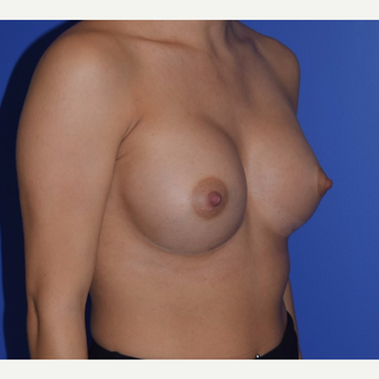 25-34 year old woman treated with Breast Augmentation after 3079183