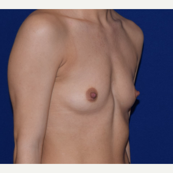 25-34 year old woman treated with Breast Augmentation before 3079183