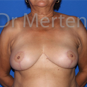 Breast Reduction after 3648494