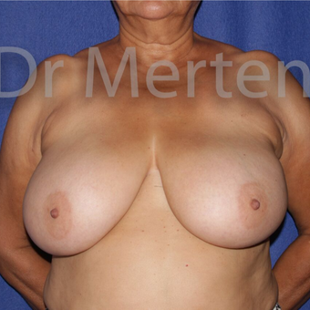 Breast Reduction before 3648494
