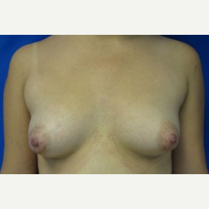 Breast Augmentation before 3054761