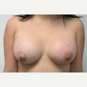 Breast Augmentation after 3054761