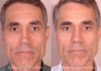 Revision Rhinoplasty before 681868