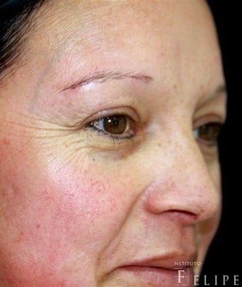 35-44 year old woman treated with Chemical Peel before 3417679