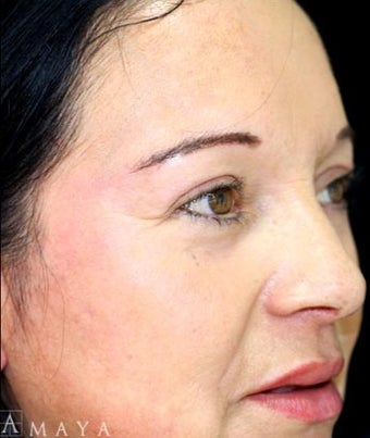 35-44 year old woman treated with Chemical Peel after 3417679