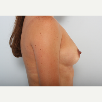 Breast Augmentation before 3425457