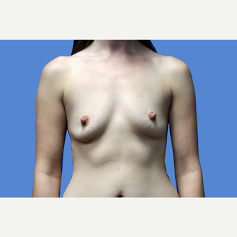 25-34 year old woman treated with Breast Augmentation before 3524715