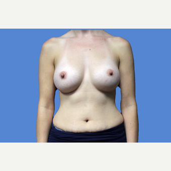 25-34 year old woman treated with Breast Augmentation after 3524715