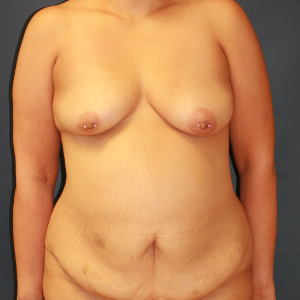 45-54 year old woman treated with Mommy Makeover before 3554450