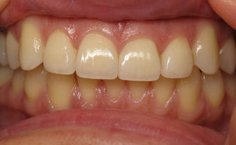 Veneers Before & After Photo after 996261