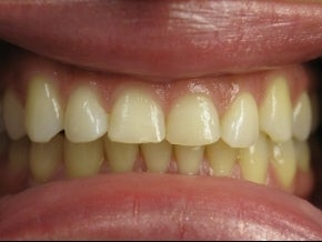 Veneers Before & After Photo before 996261