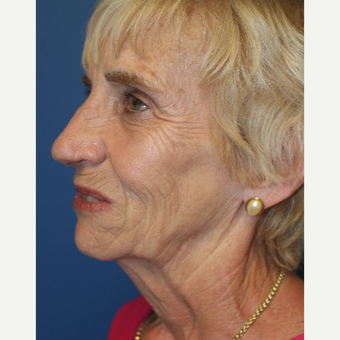 65-74 year old woman treated with Facelift before 3209068