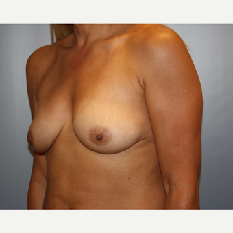 45-54 year old woman treated with Breast Augmentation before 3683520