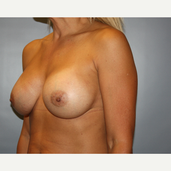 45-54 year old woman treated with Breast Augmentation after 3683520